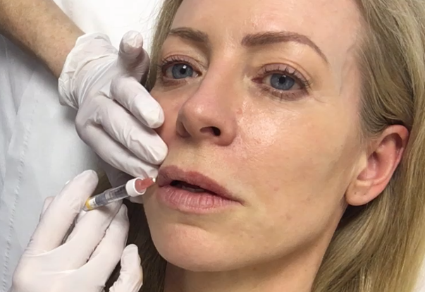 lip filler injections 2