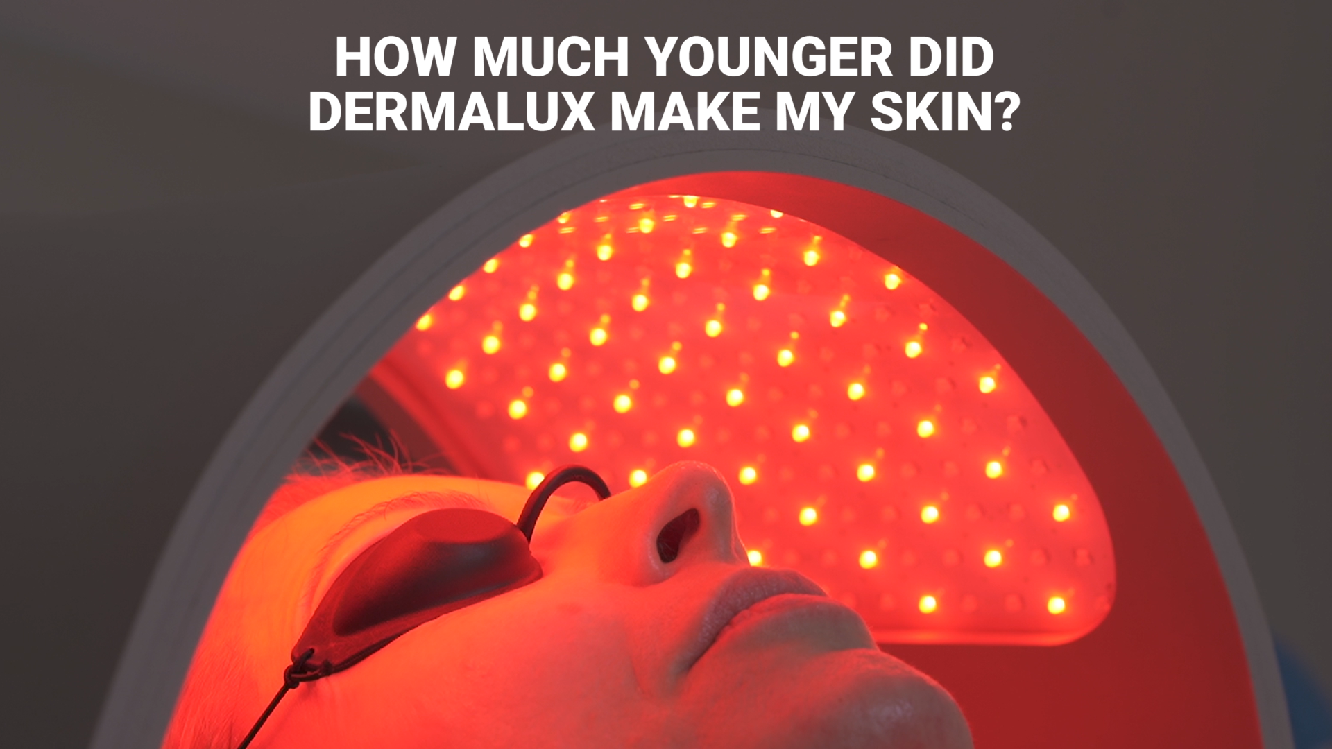 How I made my skin nine years younger during Lockdown#1