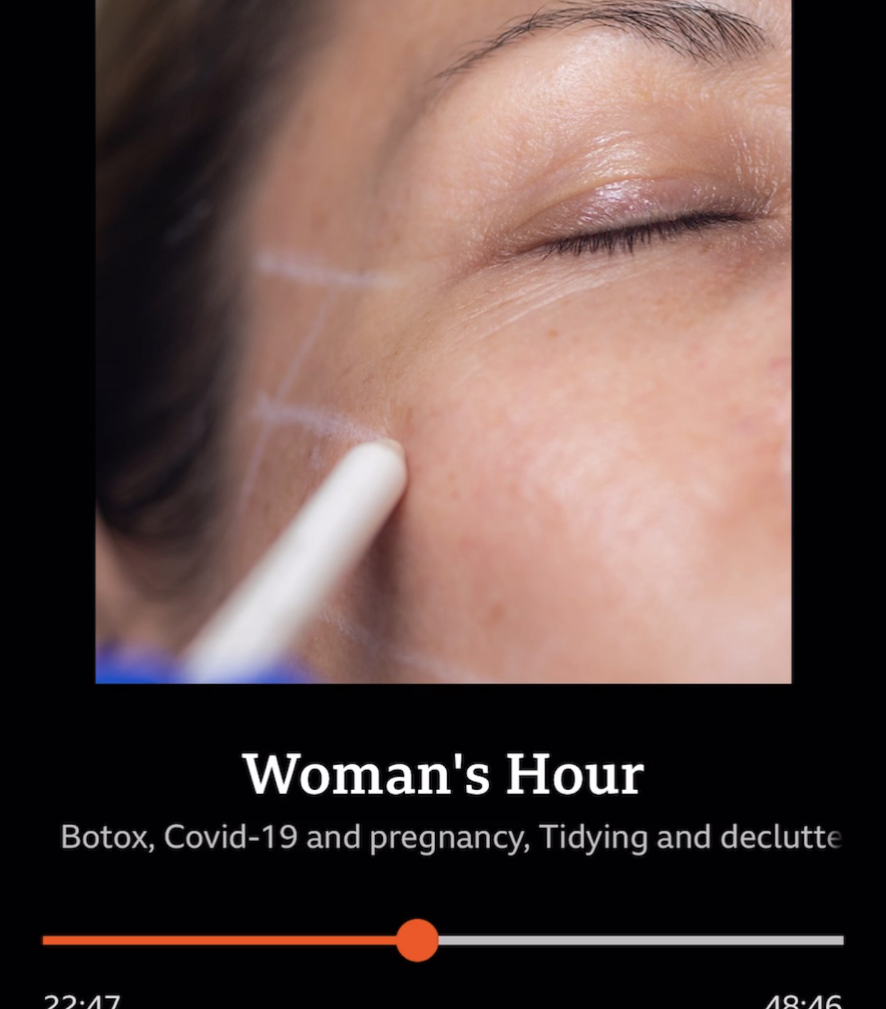image of screen grab from Woman's Hour podcast about Botox