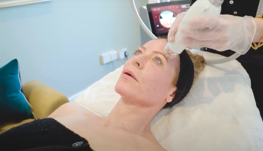 woman lying on couch having radiofrequency microneedling treatment