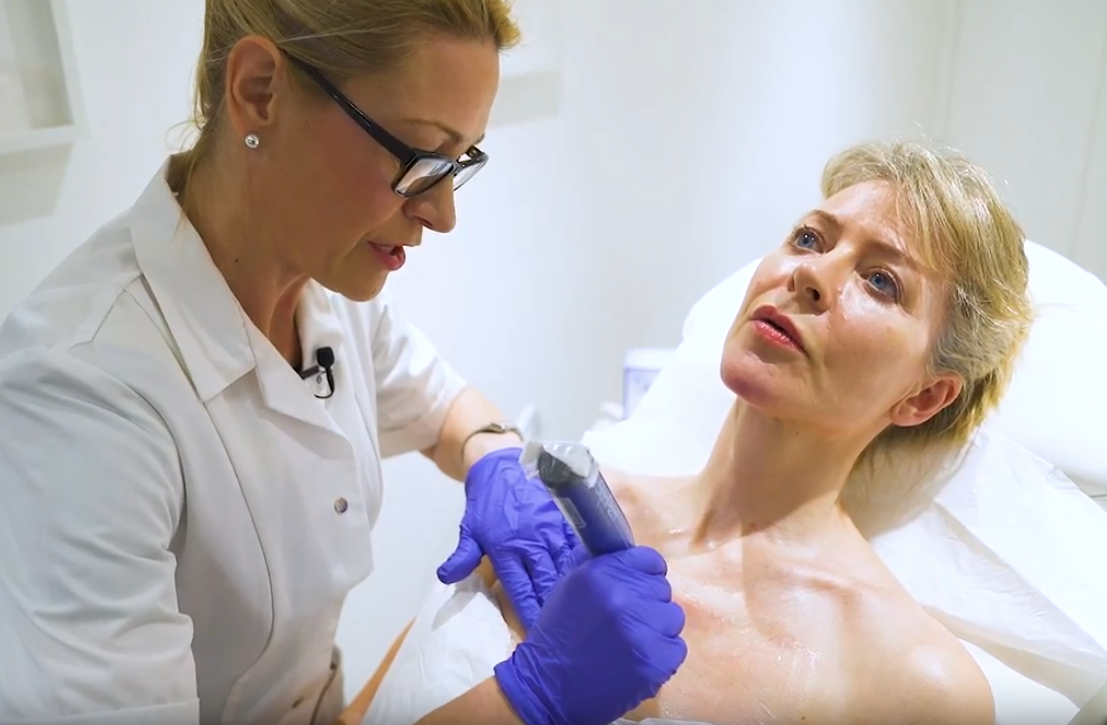 Woman having clinical microneedling treatment on her forehead